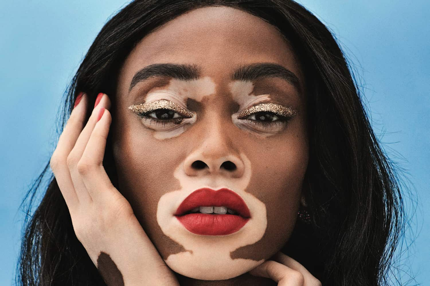 The Adorable Story Behind Winnie Harlow S Name